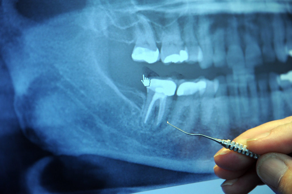Root canal blog