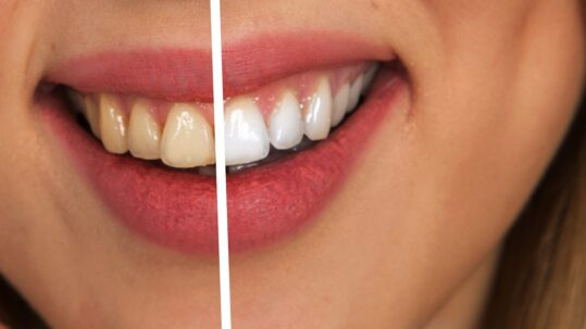 tips to keep teeth white