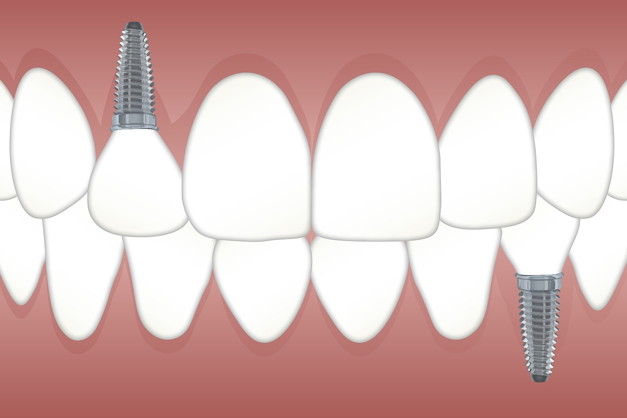 difference between bridge and implant
