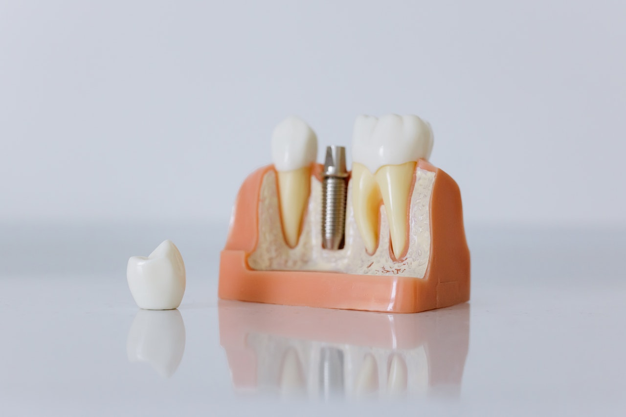 How does tooth loss affect health