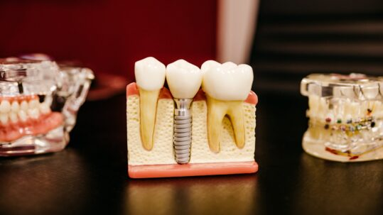 dental implant care after surgery